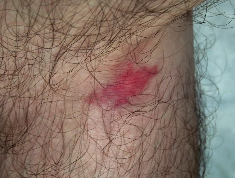 A horse fly bite. Image source Wikipedia