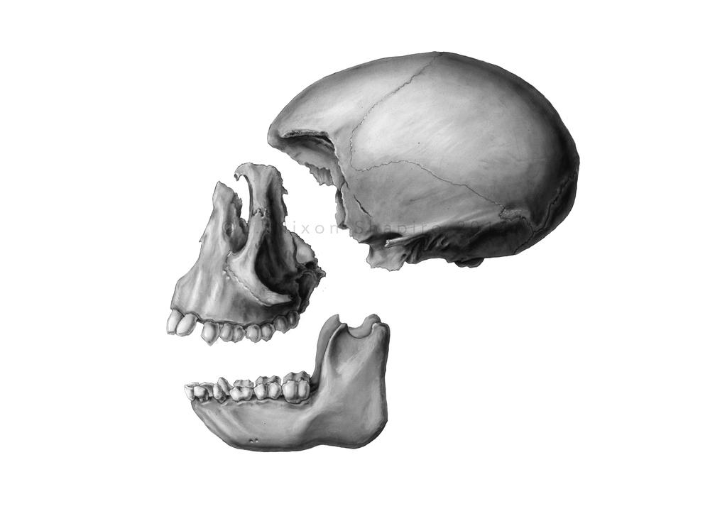 Rhesus Macaque Skull, with LaForte III Osteotomy