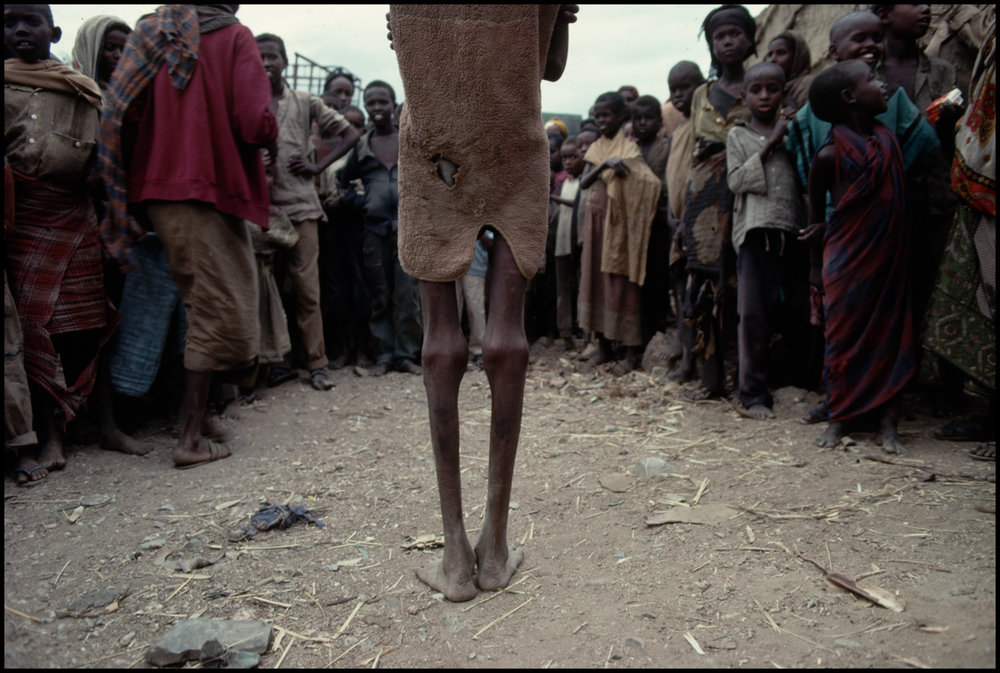 1992, Baidoa, Somalia --- The back and legs of Mohammed, a starving Somali boy who died the day after this photograph was taken during the famine that struck Somalia in 1992.
