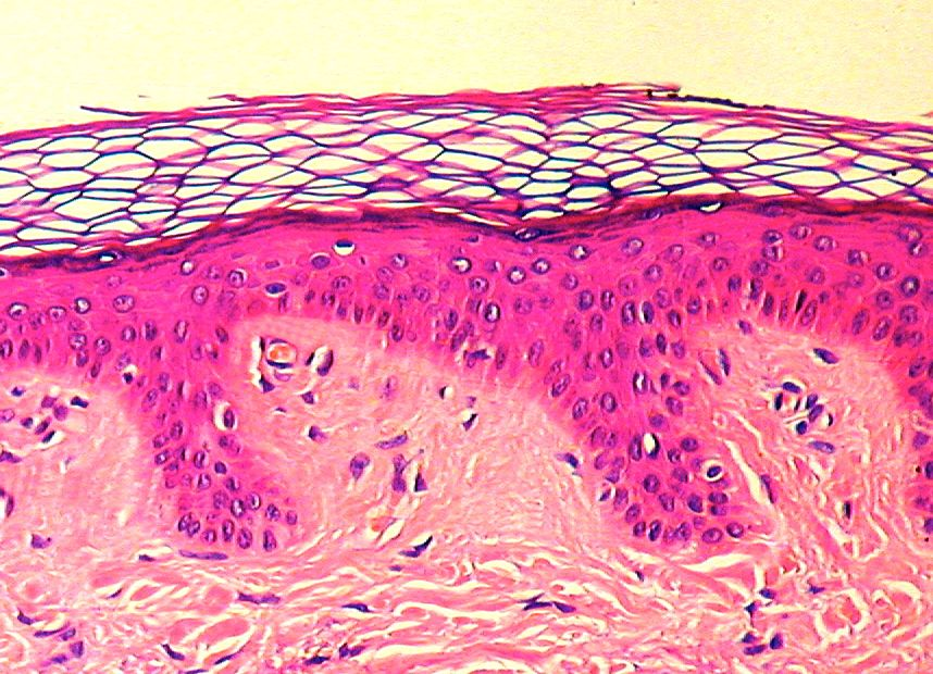 The epidermis under a powerful microscope