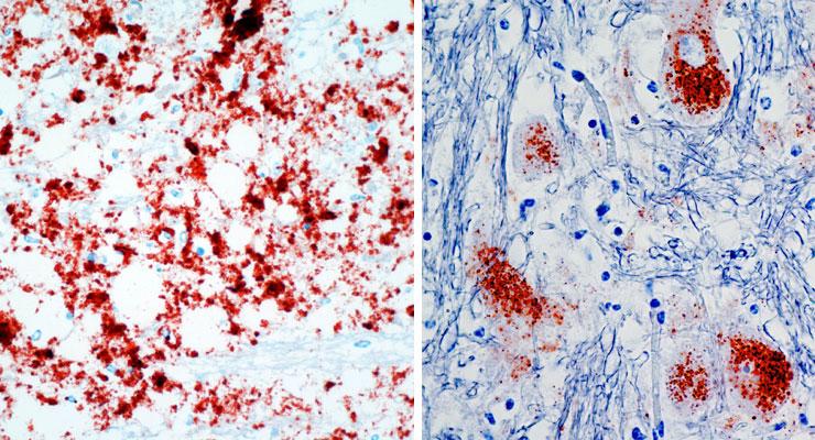 Snitt av hjerne fra rein med klassisk CWD til venstre, og snitt av hjerne fra elg med CWD til høyre. Foto Sylvie Benestad/Veterinærinstituttet.