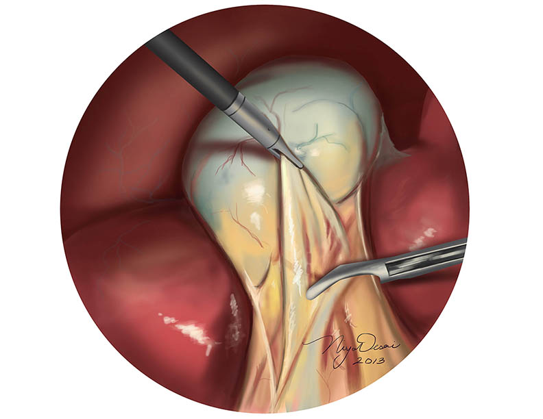 Cholecystectomy - step 2