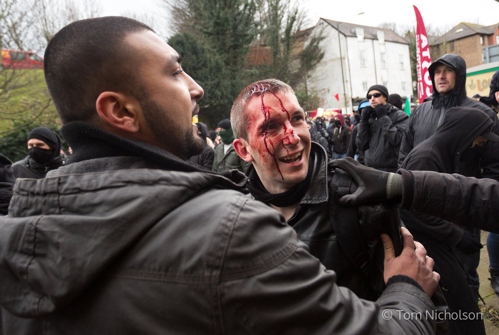 30/01/2016. London, UK. A man is injured during clashes between far-right groups and their opposition, during an anti-immigration demonstration in Dover, Kent, UK.
