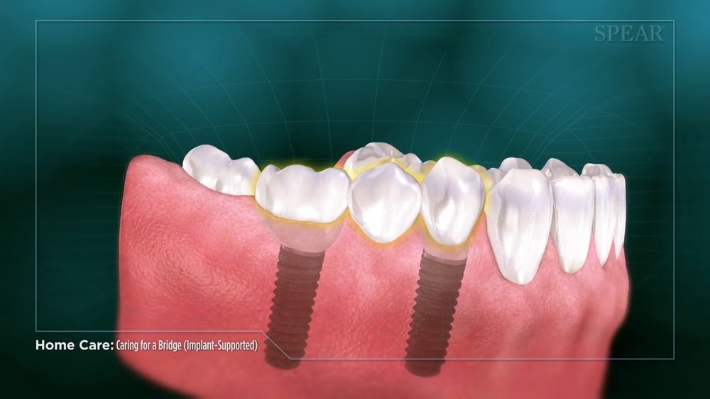 Caring for a Bridge with Implants