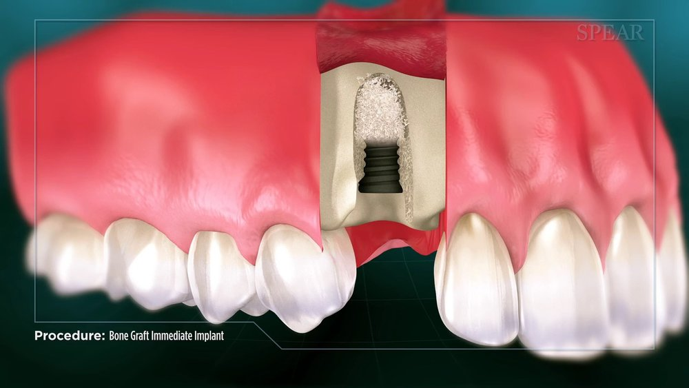 Bone Graft with Immediate Implant