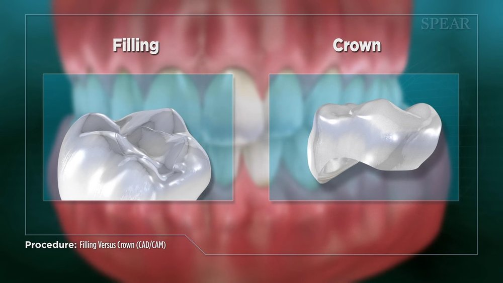 Filling vs Crown (CAD/CAM)