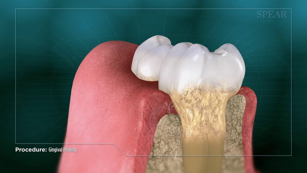 Gingival Probing and Pocket Depth