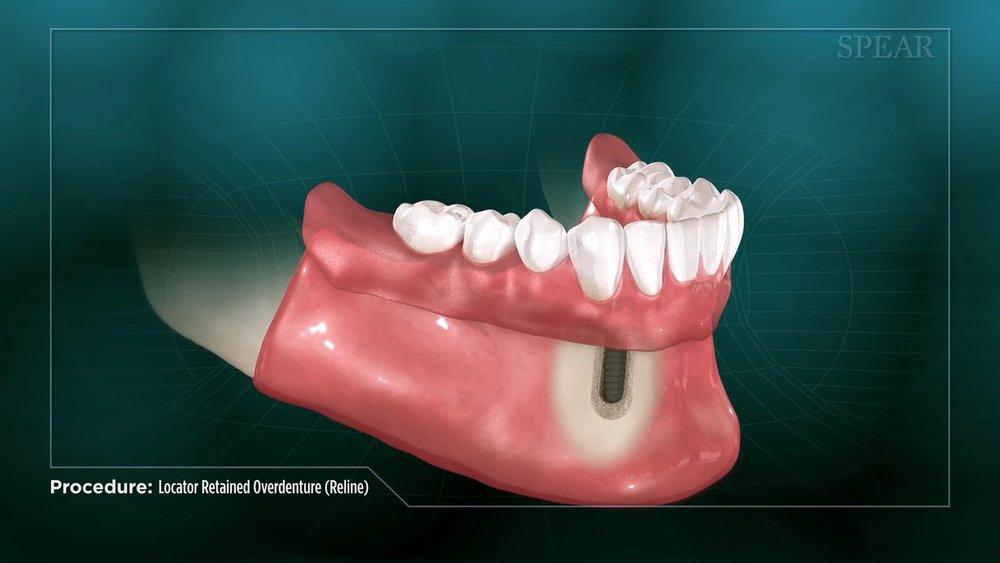 Locator Denture Reline