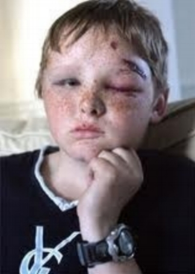 Image result for child hit by baseball