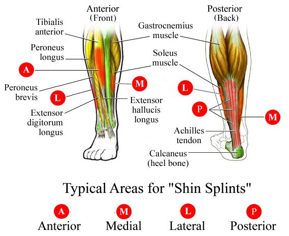 shin splint areas.jpg