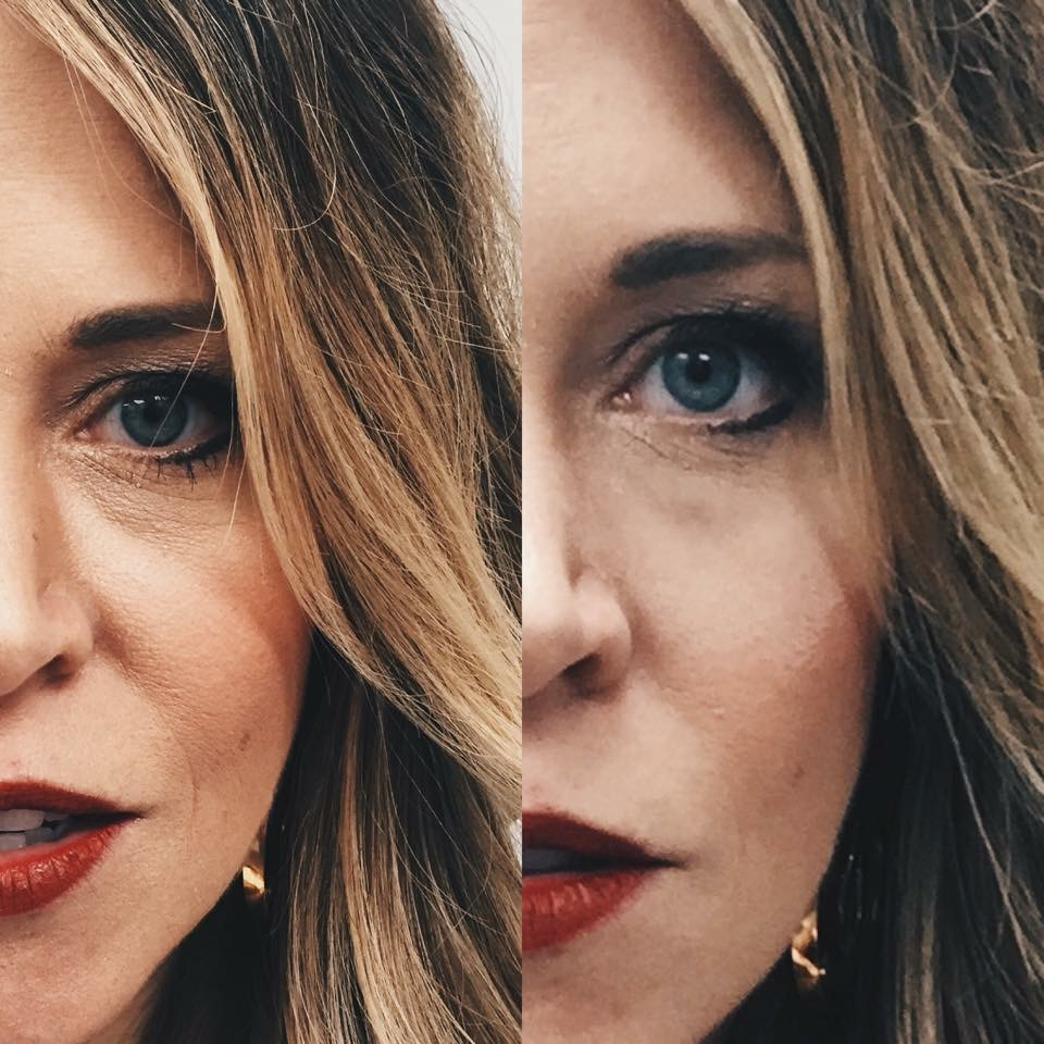 Let me reiterate that the photo on the right is NOT retouched! That's Lindsey just 2 minutes after applying Instantly Ageless to her under-eye area.