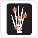 Arthritic, orthopedic and nerve injuries need extra comfort using touch screens. TAPTOOL takes the zing out of tapping on glass.
