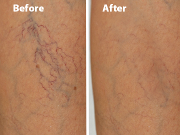 Venosan Veins Before & After