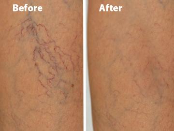 Venosan Veins Before & After