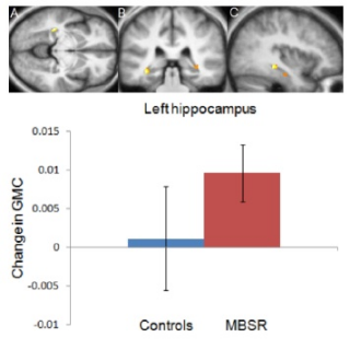 Psychiatry Research: Neuroimaging: Mindfulness practice leads to increases in regional brain matter density