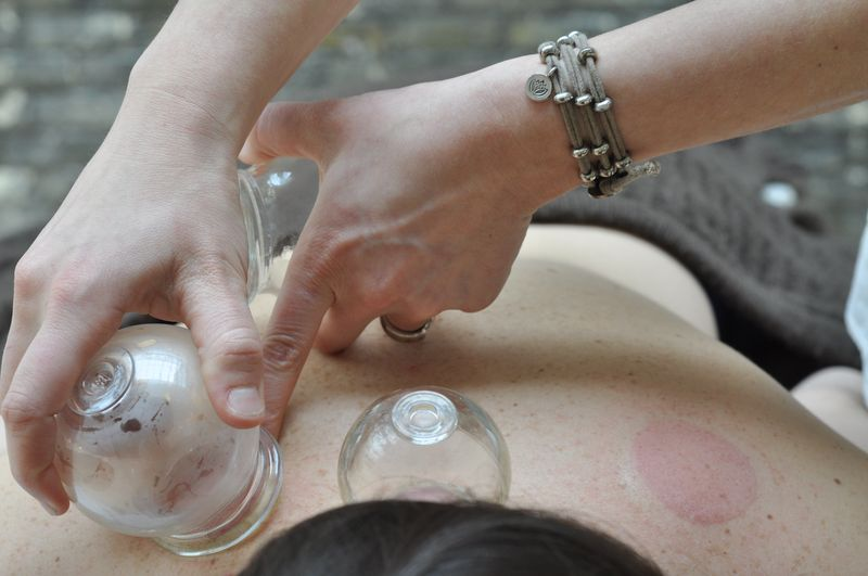 TCM Cupping therapy