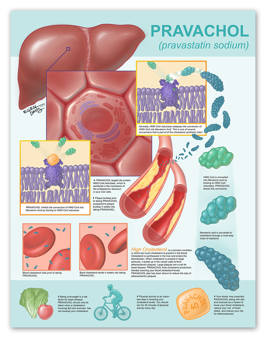 Pharmaceutical Poster Mock-up   Medium:  Illustrator & Photoshop  Objective:  To clearly define hyperlipidemia and to communicate the effects of Pravachol on hyperlipidemia to a lay audience.   © 2013 Ellen Davis