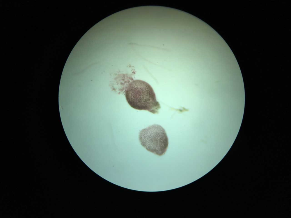 Limu kohu (Asparagopsis taxiformis) carpospore release.