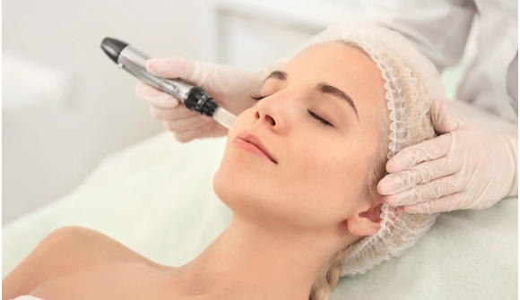 Microneedling - Microneedling or micro-needling is a process that involves using needles to puncture hundreds of tiny holes in the skin to stimulate collagen production.