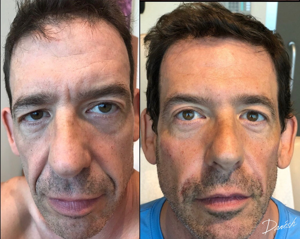 Rhytids (wrinkles) following Botox & Fillers - Learn More