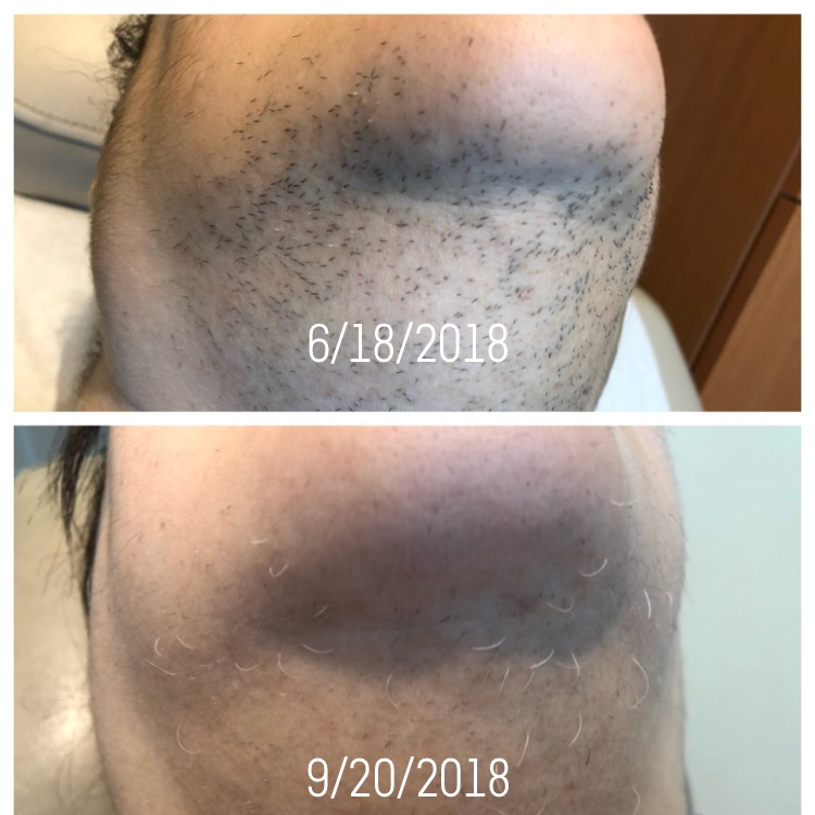 Permanent Hair Reduction Following Laser Hair Removal -