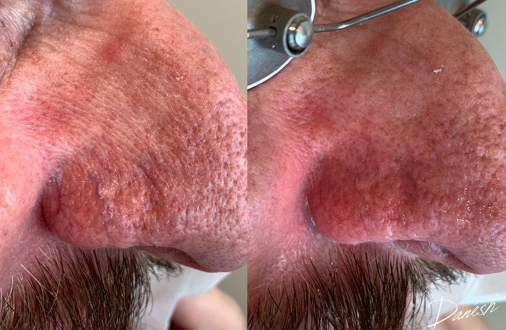 Broken capillaries following Cutera Excel V Laser - Learn More