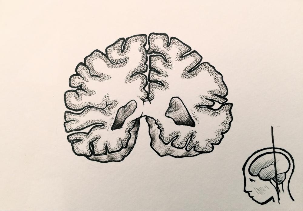 Coronal Brain Slice