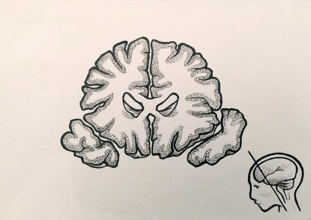 Coronal Brain