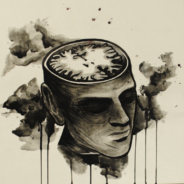 MRI Head 1.png