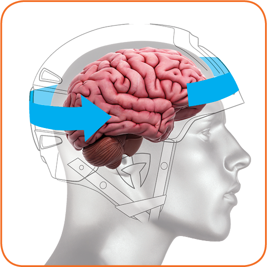 """Rotational """"spinning"""" forces on the brain soft tissue are strongly implicated in concussive brain injuries, and therefore must be addressed in order to design a truly safer helmet."""