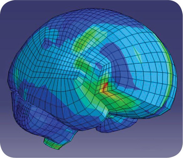 Sudden high and low energy impacts where the head and brain decelerate (stop) quickly.