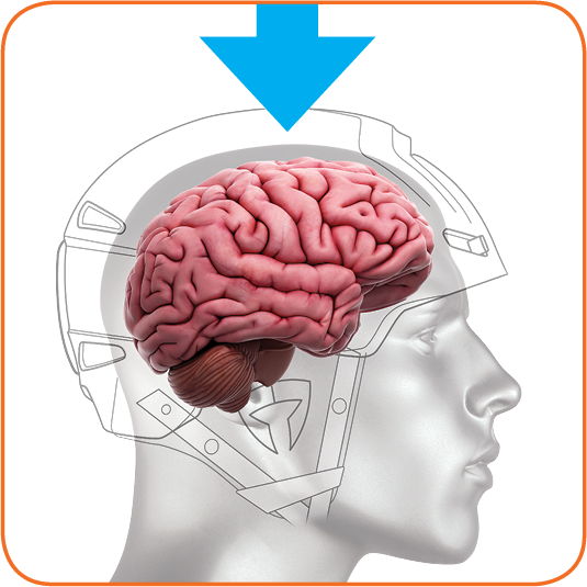 Modern helmets are conventionally designed to provide protection from high linear forces and have successfully mitigated injuries associated with these forces such as skull fractures and intracranial hemorrhaging.
