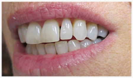 DIRECT COMPOSITE VENEERS: Tooth Reshaping, Diastema (Gap) Closure before