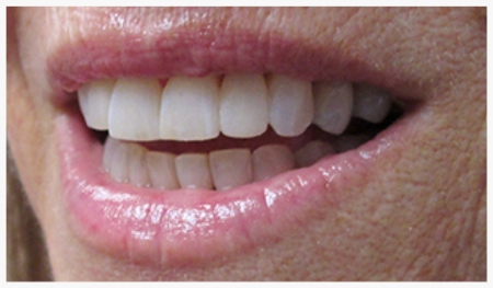 DIRECT COMPOSITE VENEERS: Tooth Reshaping, Diastema (Gap) Closure after