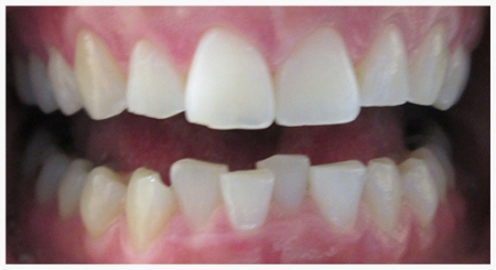 INVISALIGN® Patient 1 before