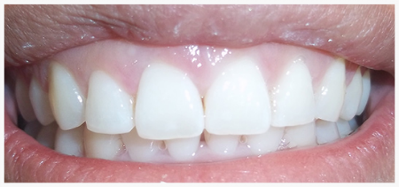 INVISALIGN® Patient 1 after