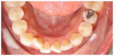 INVISALIGN® Patient 2 before