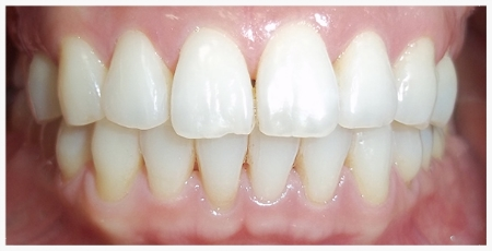 INVISALIGN® Patient 2 after