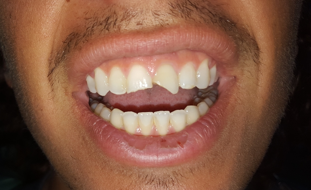 chipped tooth before anterior bonding gainesville florida dentist 1.jpg