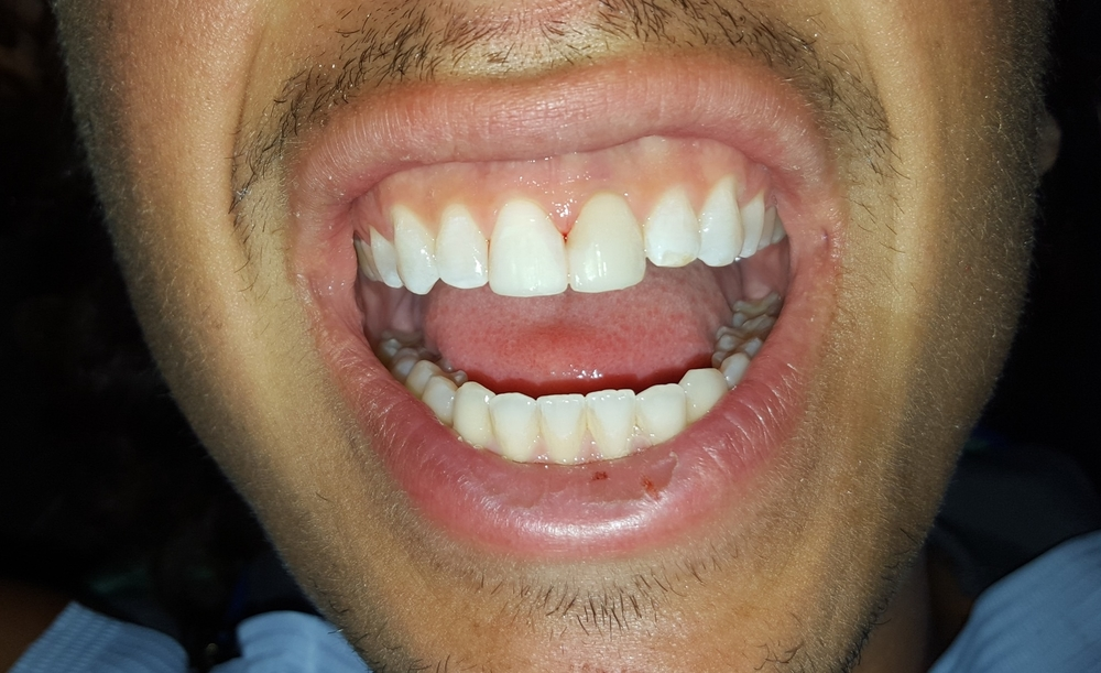 chipped tooth after anterior bonding gainesville florida dentist 1.jpg