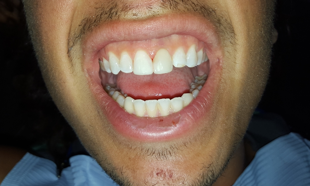 CHIPPED BROKEN TEETH after (Anterior Bonding)
