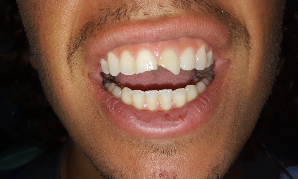 CHIPPED BROKEN TEETH before (Anterior Bonding)
