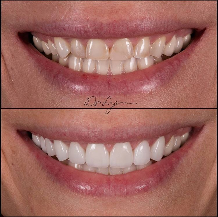 Crown Lengthening to improve teeth proportions & Veneers placed to enhance the shape, color, and texture!