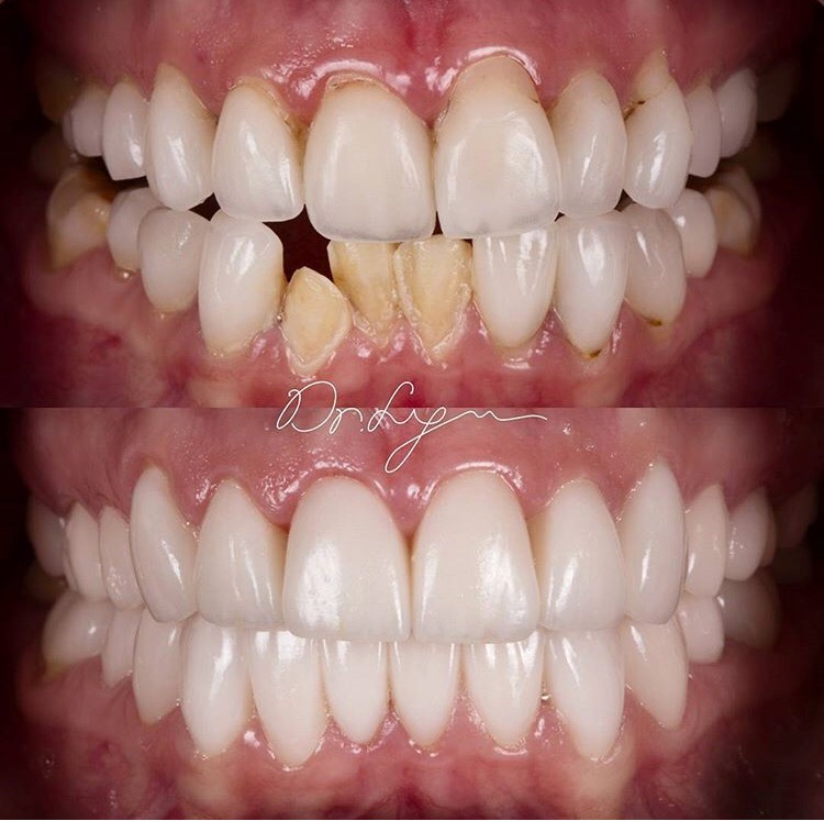 """""""Do it Once, Do it Right"""", Full mouth reconstruction. Perfect case to show proper diagnosis and treatment plan are critical factors in achieving these beautiful results!"""