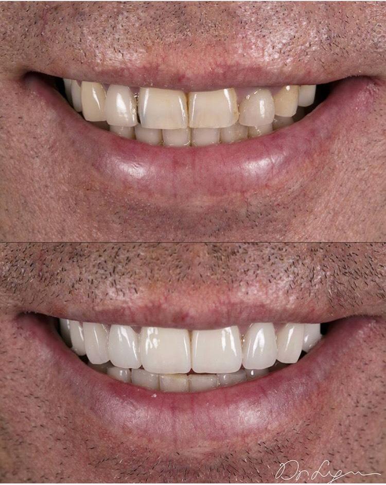 This case has it ALL: Veneers, Crowns, Implants, Bridge, Gum-Lifting (Crown lengthening), Yet harmonizing to this Beautiful Smile!
