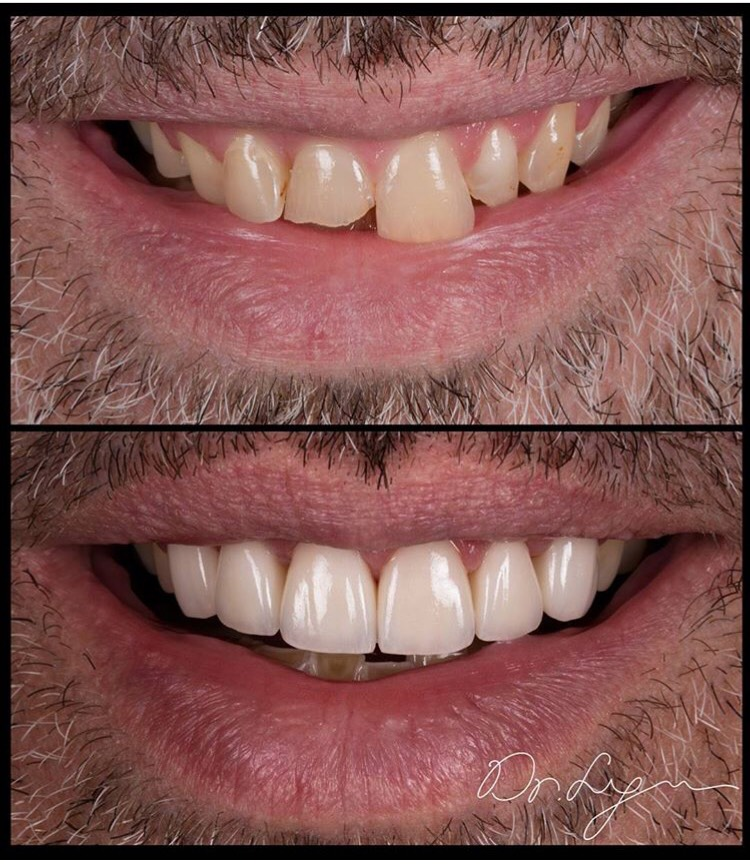 """This patient believed in """"Invisalign"""" to improve his smile. Please note that an orthodontic treatment cannot change teeth color, shape, nor texture."""