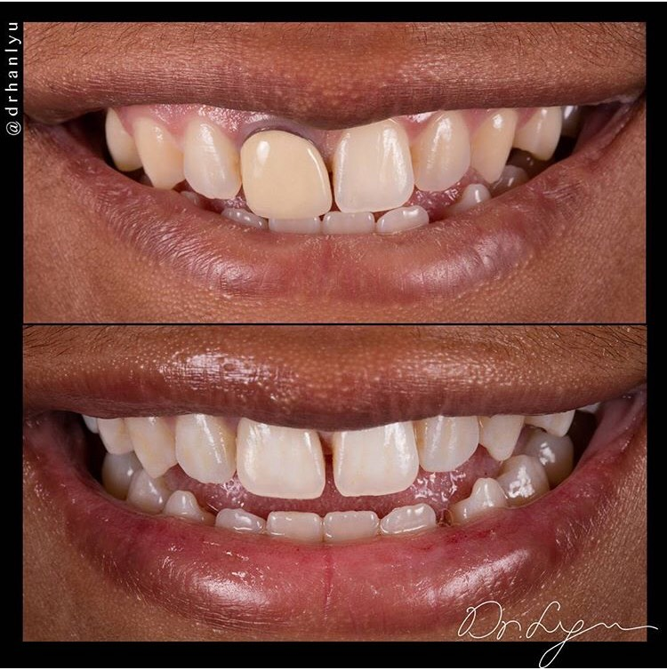 Single tooth matching- the HARDEST for any dentist (Only if he/she wants to do it Right)