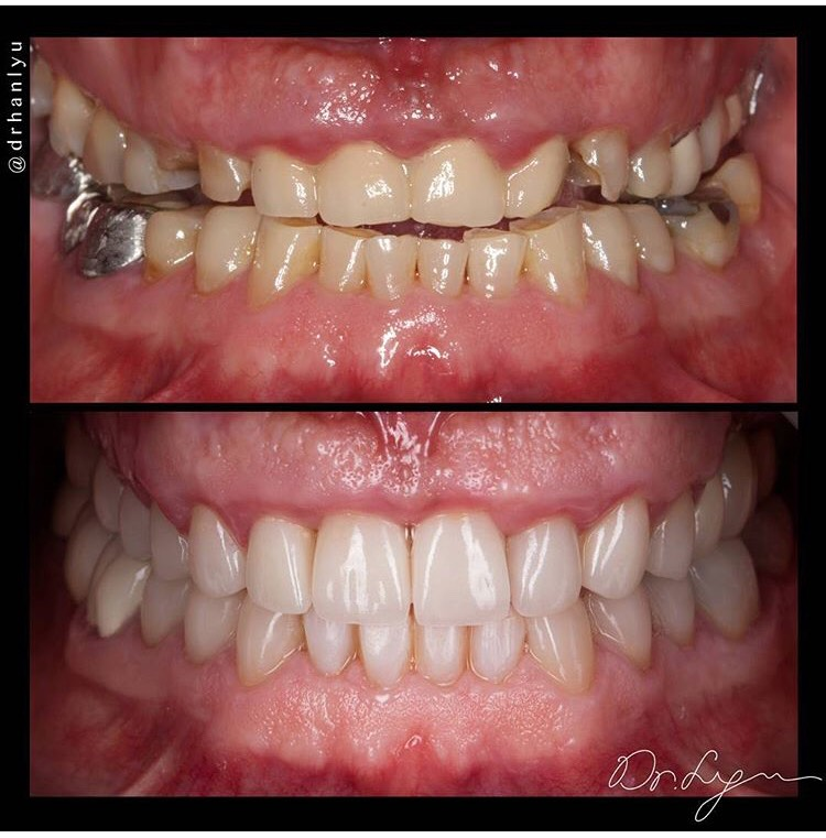 Full mouth reconstruction by Dr. Lyu. ATTENTION: Grinders & Bruxers! You can easily prevent a full mouth reconstruction by SIMPLY wearing a custom made nightguard
