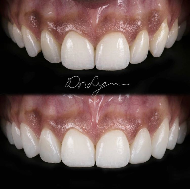 DONE in 15Minutes. This is a MOCK-UP done quickly to help patients visualize what veneers will look like! NO COMPUTER GRAPHICS needed when you can do this in 15 MINUTES