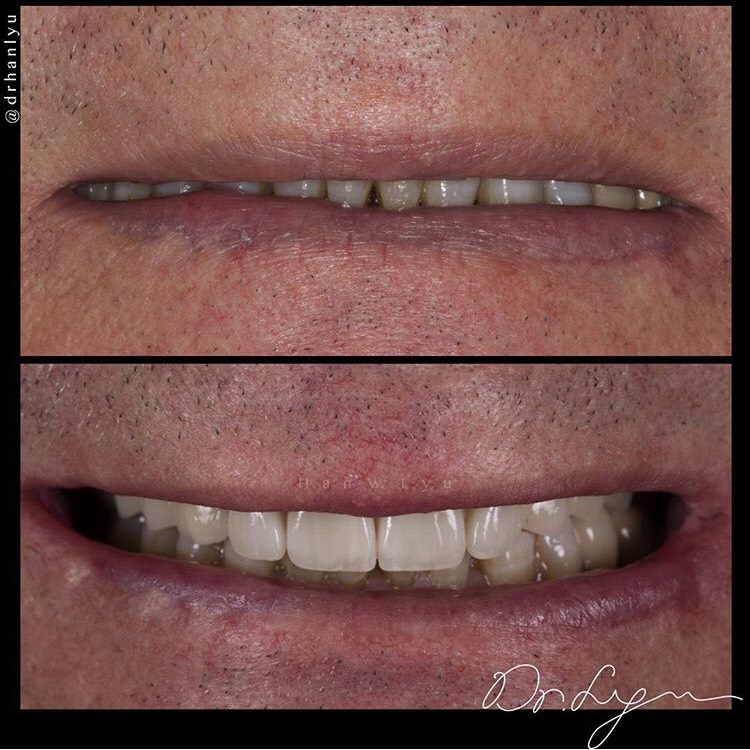 Smile Makeover by Dr. Han Lyu, Prosthodontist